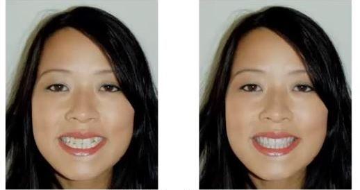 Smile Makeover by Jambert Dental